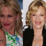 Melanie Griffith before and after plastic surgery 09