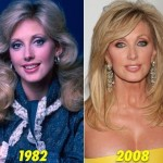 Morgan Fairchild before and after plastic surgery 01