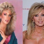 Morgan Fairchild before and after plastic surgery 02