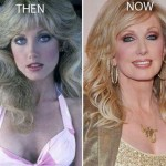 Morgan Fairchild before and after plastic surgery 03