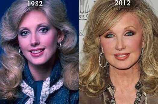 Morgan Fairchild before and after plastic surgery