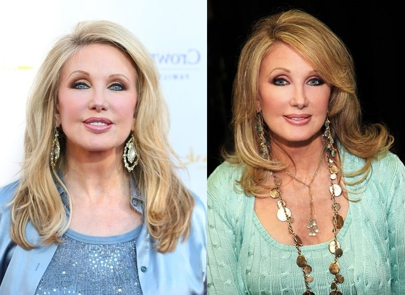 Morgan Fairchild before and after plastic surgery 07
