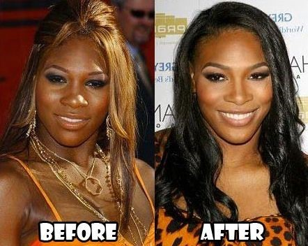 Serena Williams Before And After Plastic Surgery 04