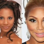 Tamar Braxton before and after plastic surgery 03