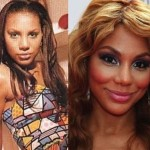 Tamar Braxton before and after plastic surgery 04