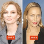 Uma Thurman before and after plastic surgery 03