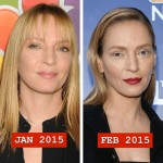 Uma Thurman before and after plastic surgery 04