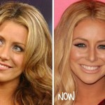 Aubrey O'Day before and after plastic surgery 02