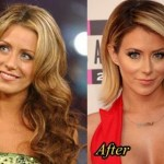 Aubrey O'Day before and after plastic surgery 03