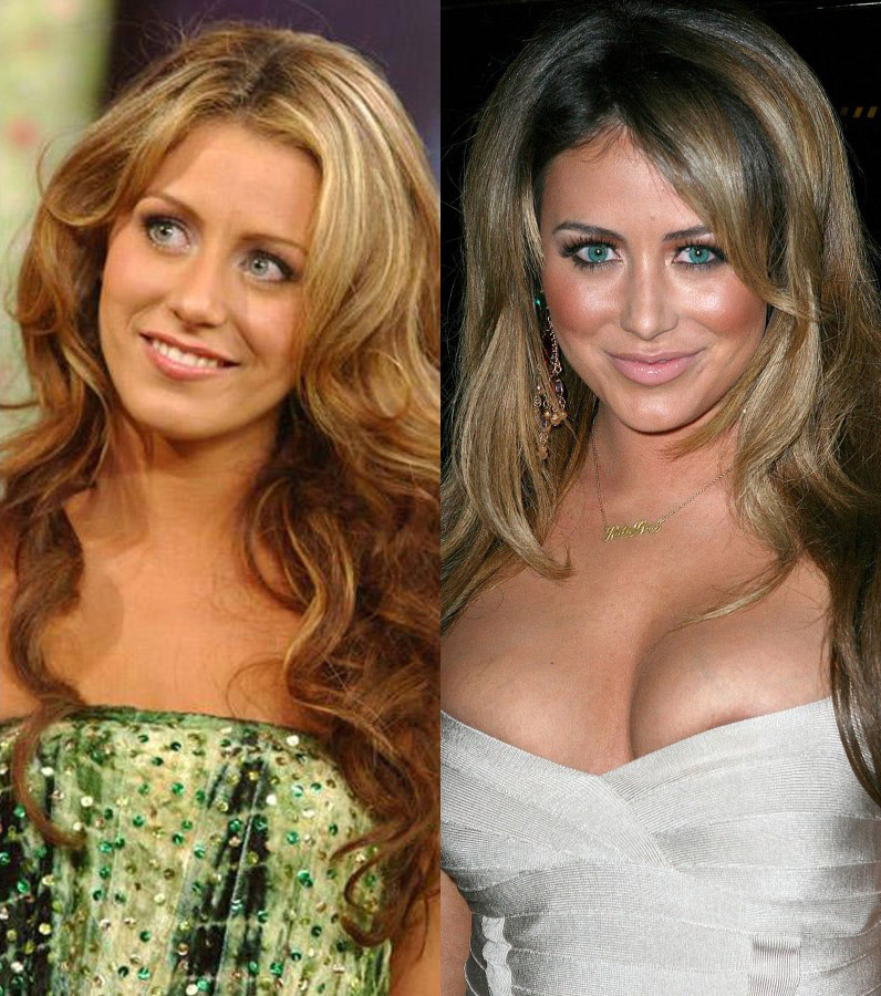 Aubrey O'Day before and after plastic surgery