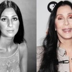 Cher before and after plastic surgery 02