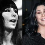 Cher before and after plastic surgery 03