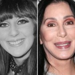 Cher before and after plastic surgery 04