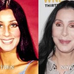 Cher before and after plastic surgery 05