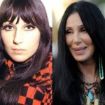 Cher before and after plastic surgery