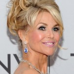 Christie Brinkley after brow lift