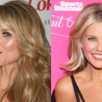 Christie Brinkley before and after plastic surgery 02