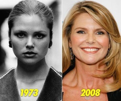 Christie Brinkley before and after plastic surgery