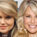 Christie Brinkley before and after plastic surgery 04