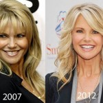 Christie Brinkley before and after plastic surgery 05