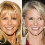 Christie Brinkley before and after plastic surgery 07