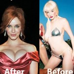Christina Rene Hendricks before and after plastic surgery