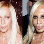 Donatella Versace before and after plastic surgery 01