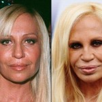 Donatella Versace before and after plastic surgery 02