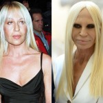 Donatella Versace before and after plastic surgery 04