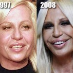Donatella Versace before and after plastic surgery 05