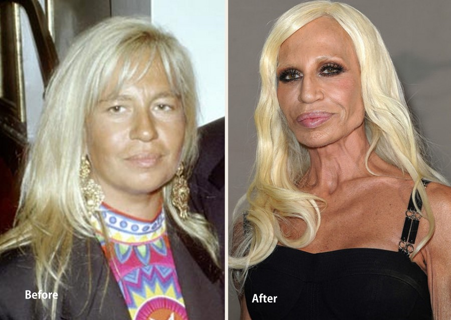 donatella versace before and after plastic surgery 07