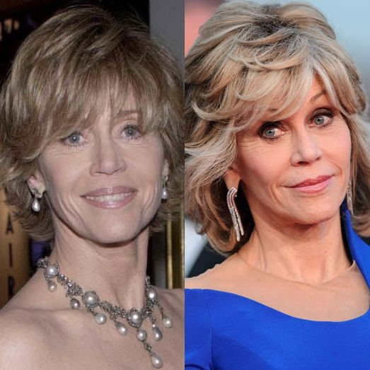 Jane Fonda before and after plastic surgery