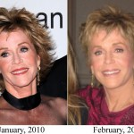 Jane Fonda before and after plastic surgery 02