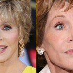 Jane Fonda before and after plastic surgery 03