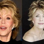 Jane Fonda before and after plastic surgery 05