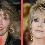 Jane Fonda before and after plastic surgery 06