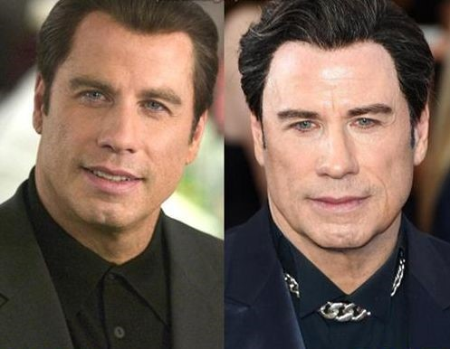 John-Travolta-before-and-after-plastic-s