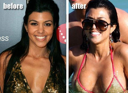 Kourtney Kardashian before and after plastic surgery