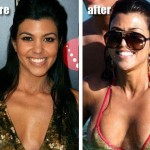 Kourtney Kardashian before and after plastic surgery 02