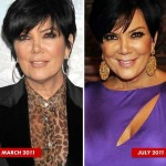 Kris Jenner before and after plastic surgery 01