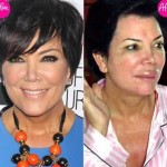 Kris Jenner before and after plastic surgery 03