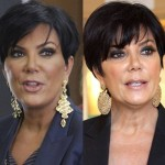 Kris Jenner before and after plastic surgery 04