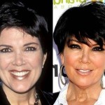 Kris Jenner before and after plastic surgery 05