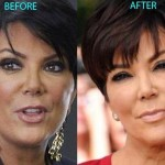 Kris Jenner before and after using botox