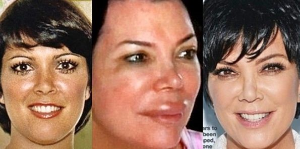 Kris Jenner before, during and after plastic surgery