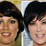 Kris Jenner then and now after plastic surgery