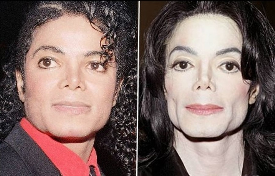 Michael Jackson before and after plastic surgery (2 ...