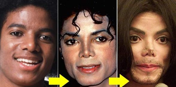 Michael Jackson cosmetic surgery disaster – Celebrity ...