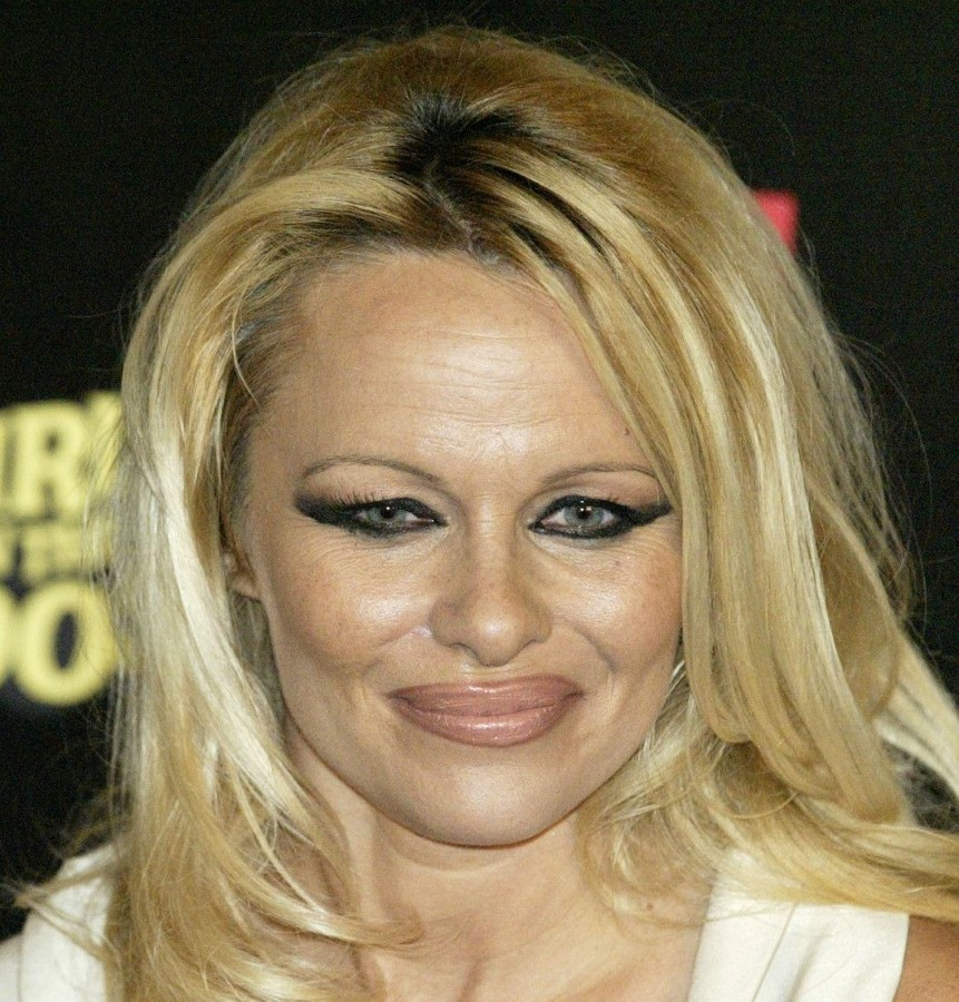 Pamela Anderson after eyelids and lips surgery