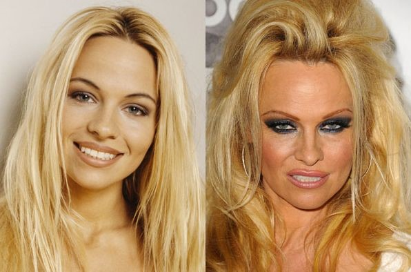 Pamela Anderson before and after plastic surgery 02 – Celebrity ...